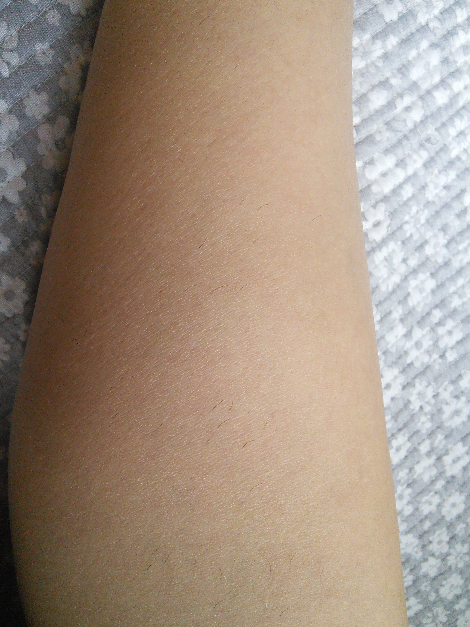 Laser Hair Removal In Seoul My Results Travelandtash